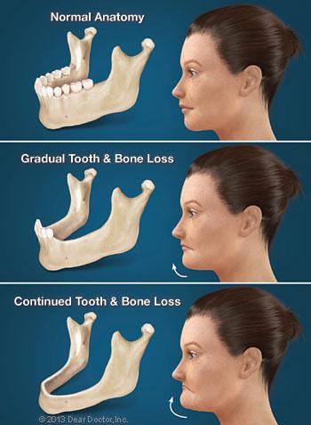 Konsekwencje utraty zębów
