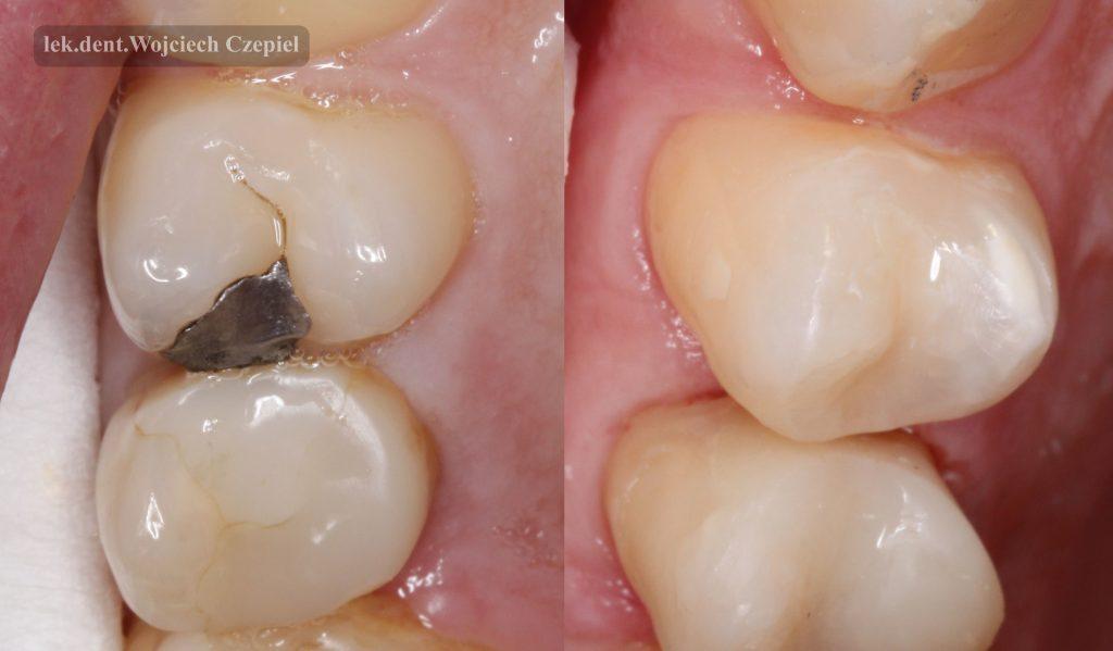 Górna 4 i 5 przed i po leczeniu