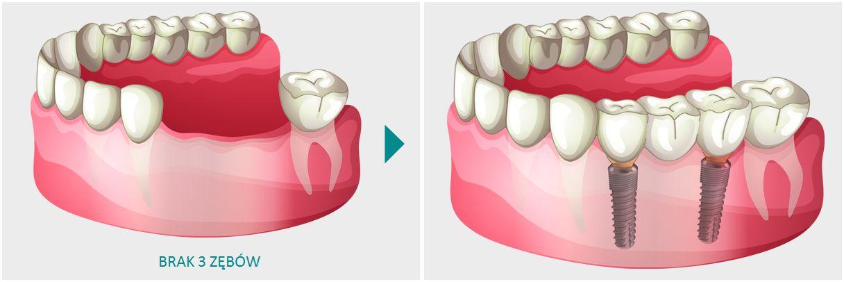 Brak 3 zębów